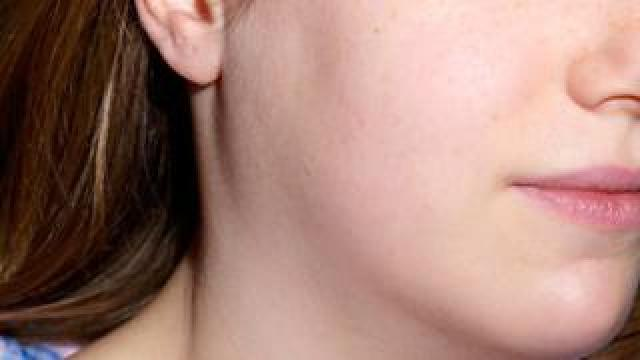 Woman with swollen glands
