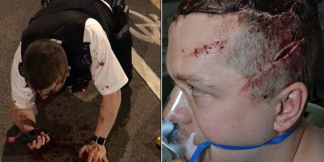 Outten is pictured left after discharging his Taser and stopping Rodwan's assault. He is pictured right following surgery for his multiple injuries.