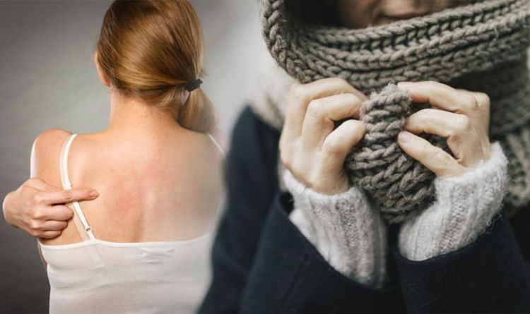 Eczema treatment: Six simple things you can do to manage skin discomfort