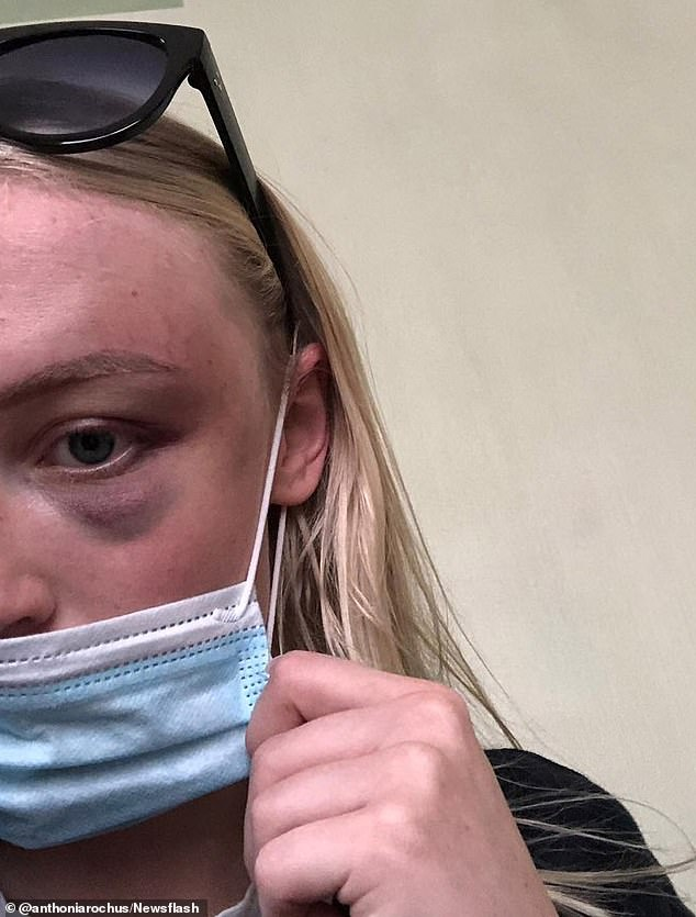 One alleged attack landed the young woman in the hospital. Rochus said a doctor had told her that she had suffered a heavy blow to the temple that and if it had been a bit stronger, she could have been killed