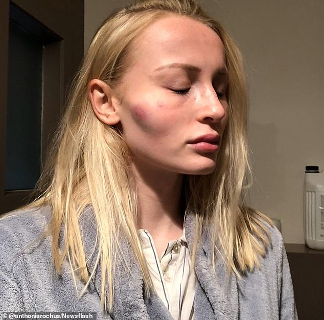 After punching a hole in a door and knocking a lamp of the ceiling, Rochus' ex-boyfriend allegedly turned his anger on her. Rochus claimed she was first attacked after the couple had been out at a party: 'At home, he grabbed my hair and smashed my face into the radiator'