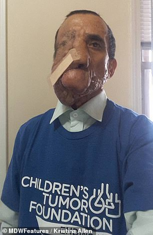Ashok pictured after his operation wearing a Children's Tumor Foundation t-shirt
