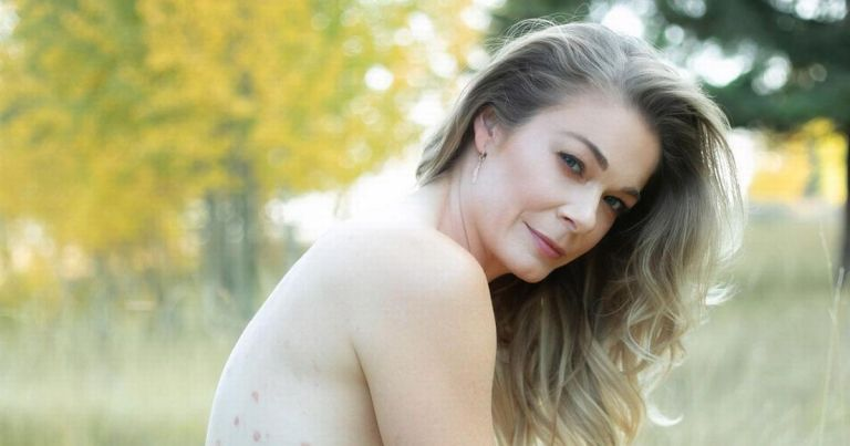 LeAnn Rimes poses completely nude as she shares 'unabashedly' about psoriasis