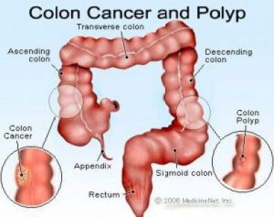Colon Cancer in Kenya