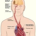 Καρδιακό-εγκεφαλικό επεισόδιο: πώς να τα αντιμετωπίσετε