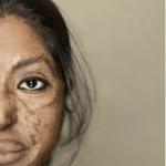 """""""Τα πρόσωπα του θάρρους"""": Άνθρωποι που δέχτηκαν επίθεση με οξύ και επέζησαν"""