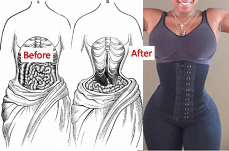 8afc0a85eca The Bad Side Of Waist Training - News Ghana