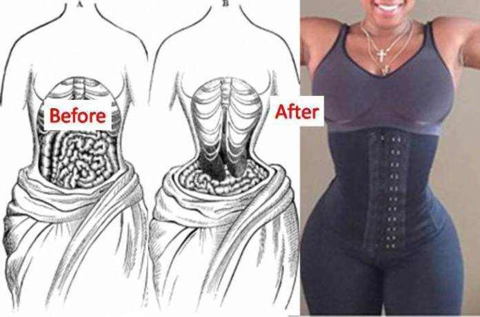 7f1377ee40c The Bad Side Of Waist Training