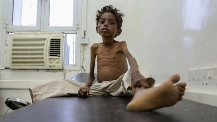 five-year-old Mohannad Ali lies on a hospital bed in Abs, Yemen