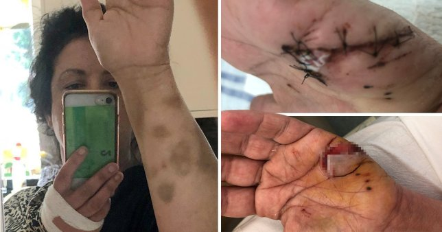 Woman whose flesh was eaten by dangerous dog at campsite could lose her fingers