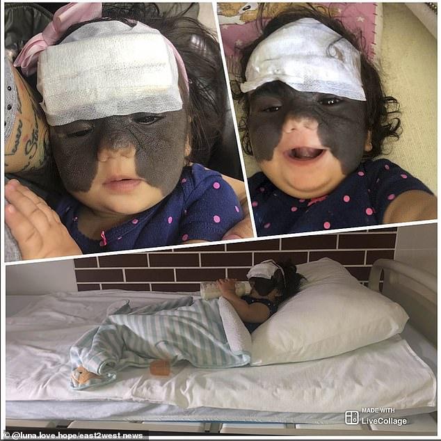 Birthmark On Face Baby Has 'batman Girl With Mask' Born