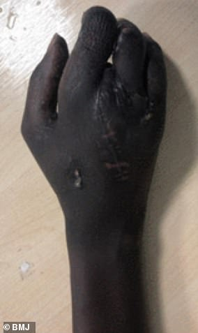 Hewas left with four fingers following the horrendous accident