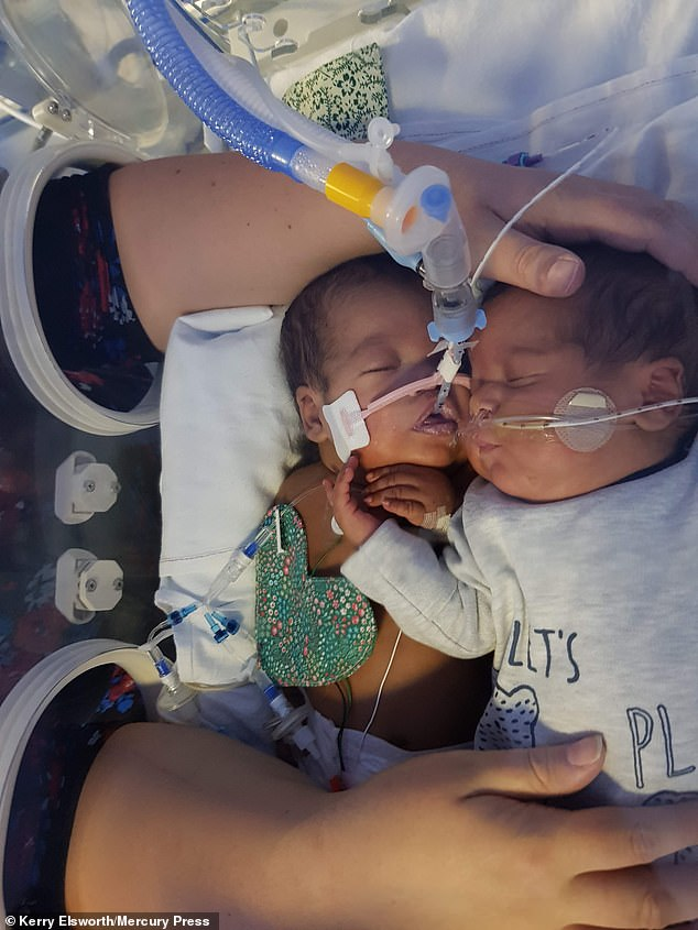 TwinsDylan and Deiniol cuddle in Deiniol's incubator after being born 15 weeks prematurely. Their mother claims this embrace saved Deiniol's life