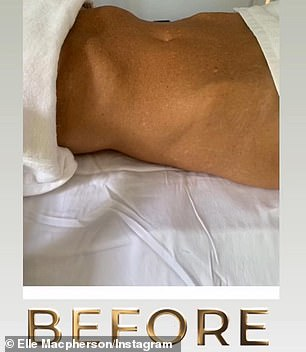 Before and after! Elle then described her love for lymphatic drainage, praising celebrity masseuse Sheila Perez for her toxin-reducing massage techniques
