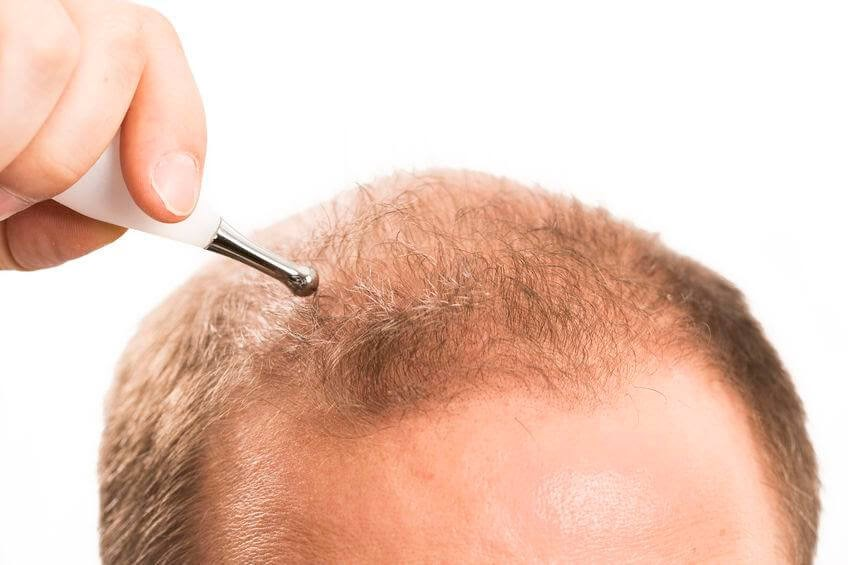 Hair Transplant Treatment: Procedure And After Effects
