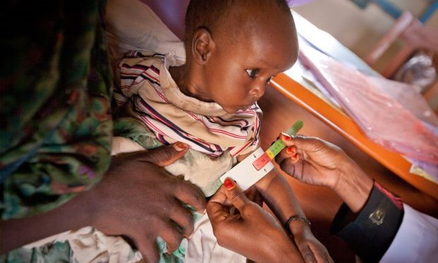 treatment of malnutrition