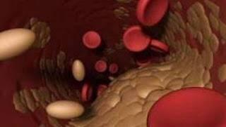 χοληστερίνη1