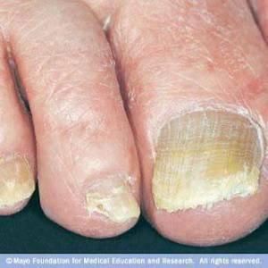 Μύκητες των νυχιών. Θεραπεία με φυσικές μεθόδους.