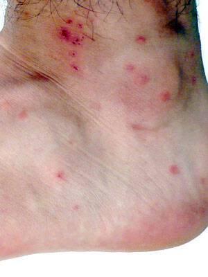Τσιμπήματα εντόμων: Πώς θα ξέρετε τι σας τσίμπησε ανάλογα με το σημάδι στο δέρμα (φωτογραφίες)