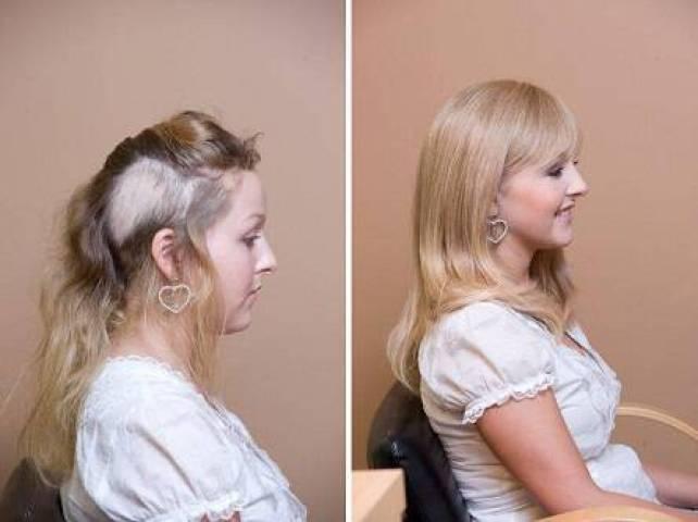 trichotillomania-hair-regrowth