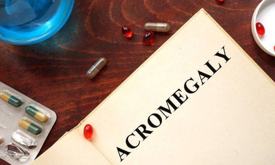 bigstock-Acromegaly-written-on-book-wit-101338283
