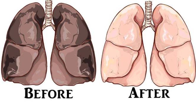 tartar-nicotine