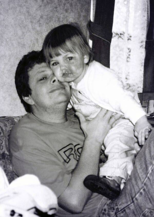 PIC FROM CATERS NEWS - (PICTURED: Amy Elsegood as a child with her dad) - A beautiful woman with a birthmark covering half her face has launched a make-up vlog to share her impressive camouflage techniques. Amy Elsegood, 24, from Ripon, North Yorkshire, was diagnosed with a birthmark on her face commonly known as a port wine stain - shortly after birth. The purple coloured mark has caused Amy to be bullied and despite finally feeling comfortable in her own skin, she has decided to try and help others. After using special make-up since 11 years old to conceal her birthmark, Amy has now adopted her own techniques to make her face appear symmetrical and blemish free. Since launching her first video on Sunday (November 6) Amy has already received dozens of supportive messages. SEE CATERS COPY.