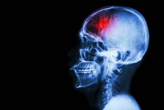 Δεύτερο εγκεφαλικό: Ποιοι διατρέχουν μεγαλύτερο κίνδυνο και γιατί