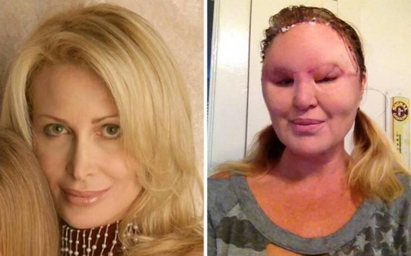 Η γυναίκα που παραμορφώθηκε και τυφλώθηκε από το ένα μάτι από τις πλαστικές