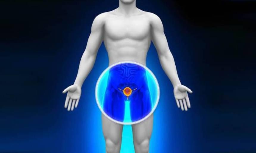 Καρκίνος του προστάτη: Ορμονοθεραπεία μετά την προστατεκτομή «συνιστά» νέα έρευνα -ΕΙΚΟΝΕΣ