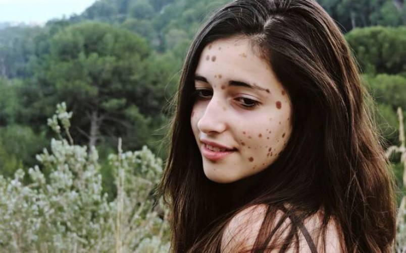 Η ιστορία της 16χρονης με τα 500 σημάδια στο σώμα της