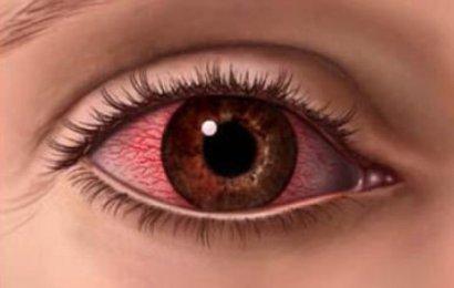 Göz Kuruluğu Nedir ? Nasıl Tedavi Edilir ?