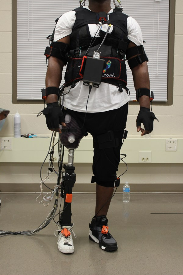 Study Impact Of Power Prosthetic Failures