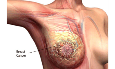 Study links hair dye, relaxers to breast cancer