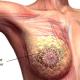 Breast cancer: Rotary screens 200 women