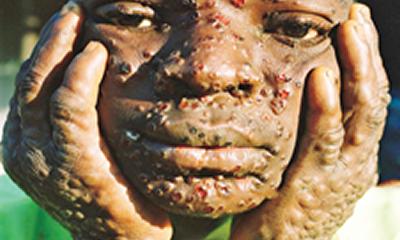 Monkeypox: Delta mounts border patrol against Bayelsa