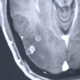 Man found with 700 tapeworms in his brain, chest and lungs after eating pork