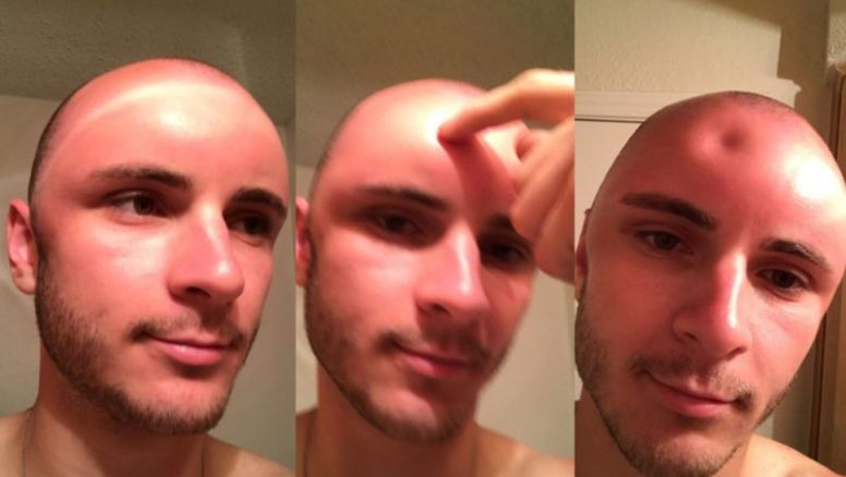 This man's sunburn was so severe it caused a dent in his head