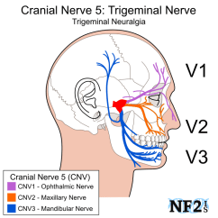 Trigeminal Nerve Diagram How To Wire A 3 Way Dimmer Switch Diagrams Cn5 Cranial 5 Subparts Branches Filiment