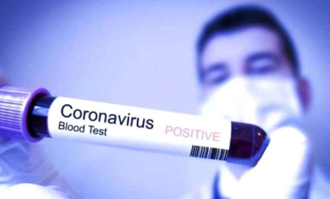 Dinas Kesehatan Menelusuri Perjalanan WN China di Bali Diduga Terjangkit Virus Corona