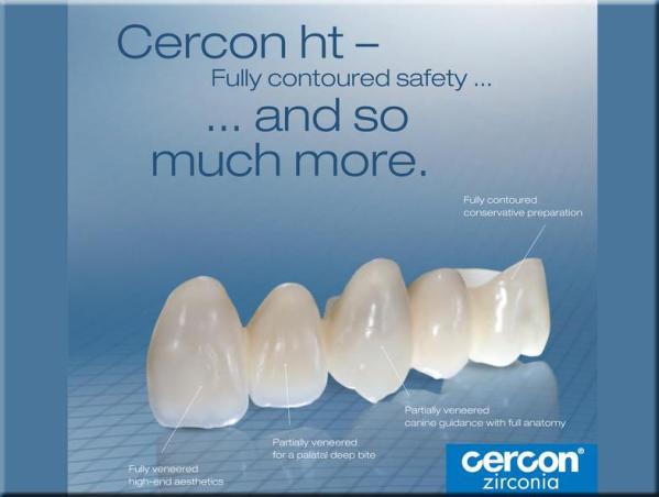 So sánh răng sứ Emax và răng sứ Cercon