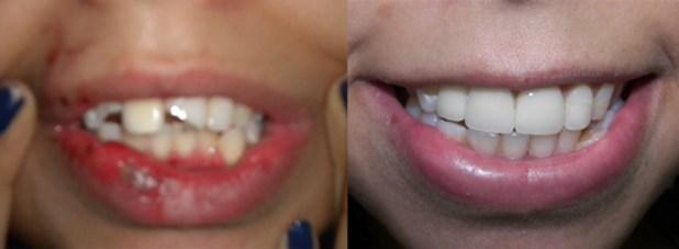 Răng bị vỡ ngang thân