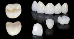 Phục hình răng sứ Katana Zirconia cho hàm răng thêm đẹp