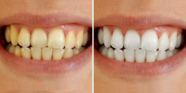 Mẹo vặt làm đẹp: Tẩy trắng răng uy tín ở đâu? Teeth-whitening-before-after