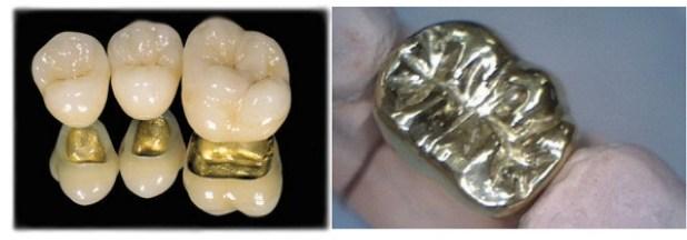 Tìm hiểu lợi thế và hạn chế của răng sứ kim loại