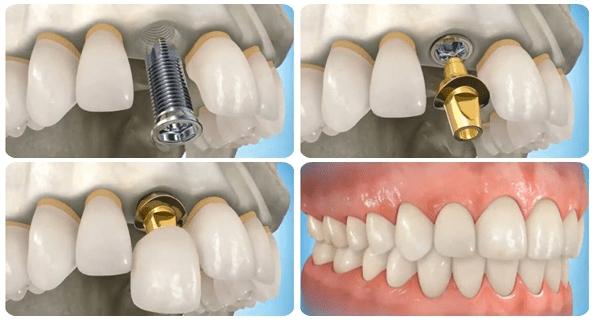 Thời gian trồng răng sứ mất bao lâu