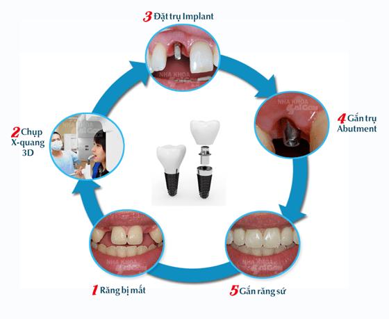 Đặt implant là giải pháp tối ưu cho tình trạng bị mất răng