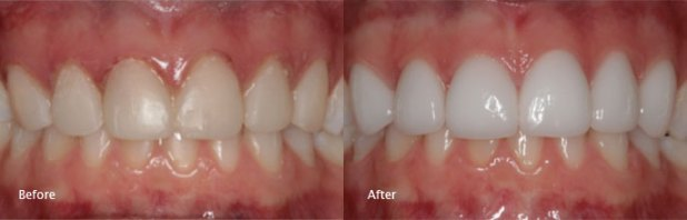 emax-veneers-before-after