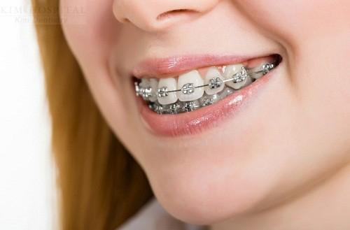 nên niềng răng hay bọc răng sứ
