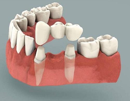 Làm cầu răng sứ, trồng lại răng mất Không đau - Tiết kiệm - Hiệu quả